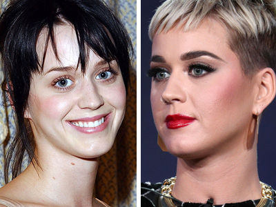 Katy Perry Talks Plastic Surgery and Reveals Where She Got Filler Injections!