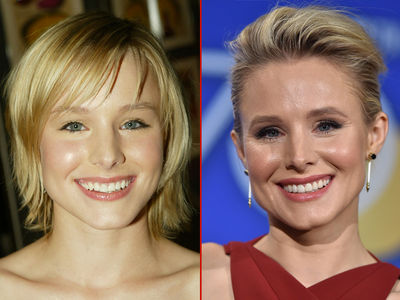 Kristen Bell -- Good Genes or Good Docs?