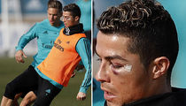 Cristiano Ronaldo Sports Black Eye After Bloody Collision