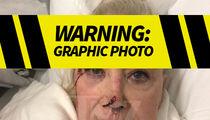 Sally Kirkland Head Injury Photo, Actress Recovering Post-Surgery