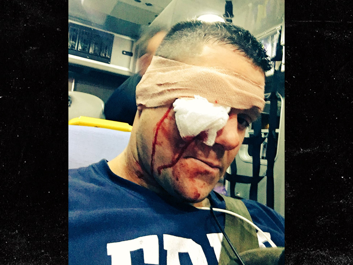 Eddie Edwards BLASTED IN THE FACE With Baseball Bat on Impact Wrestling