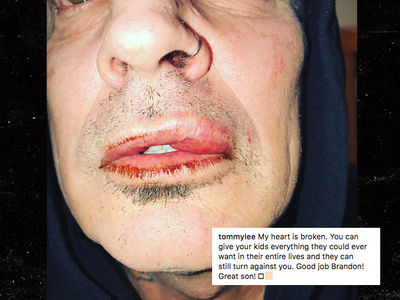 Tommy Lee's Son, Brandon, Says Dad Was Drunk, Punched Him in Self-Defense (UPDATE)