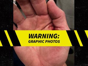 Tom Brady Hand Injury